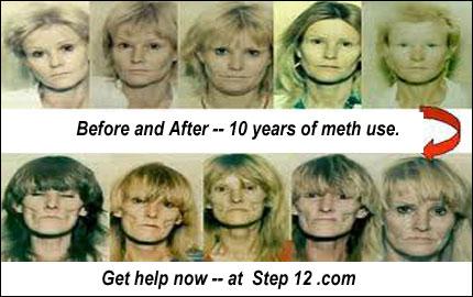 Get meth help now